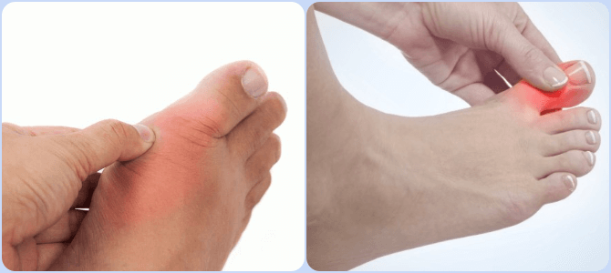 Sustaflex valu liigestest