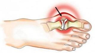 Suurte liigeste haigused Hoori liigesed parast horisontaalset baari