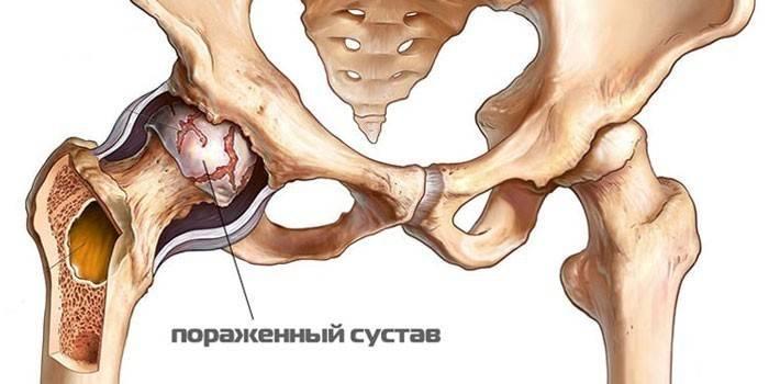 anesteesia, kui polve menetis Liigese valu migreerimine