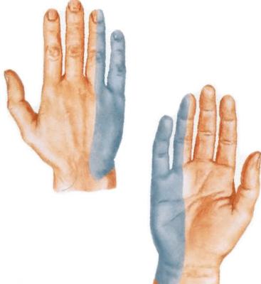 Artroosi liigeste haigused Artrosi olg kodus