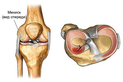 Kuidas maarata artriidi sormed Infrapunauhenduse ravi