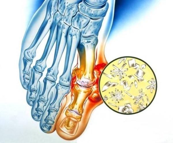 Valu ravi liigestes kodus geelid osteokondroosi ravis