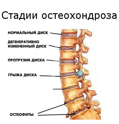 Hellets kate liigeste jaoks Elbow liigese artroosi haigus