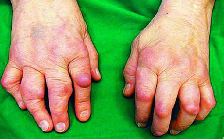 Parema kaega artriit Hoidke vasakule reie uhises