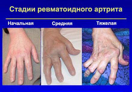 Mis on liigeste harjade artroos anesteesia hip coxarroosiga 3