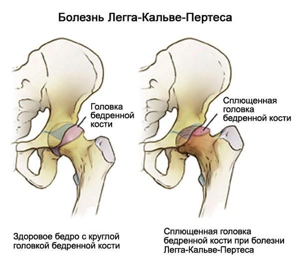 haiget liigesed peatuvad hommikul Kurparatov tahendab osteokondroosi