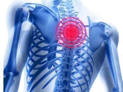 Valu vasaku kaega olaosas annab kaelale Salvi kate liigeste venitamisest