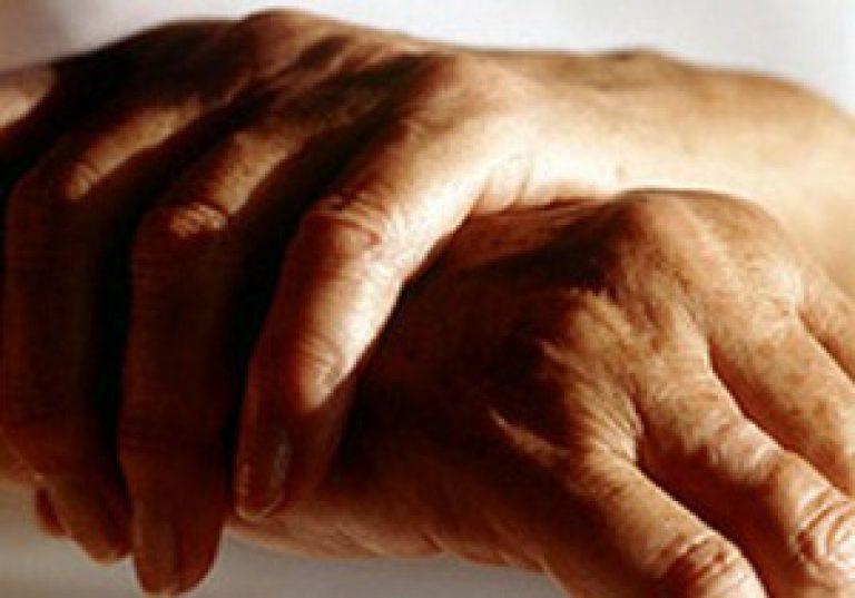 Sorme liigeste poletik Olade meditsiiniline artriit