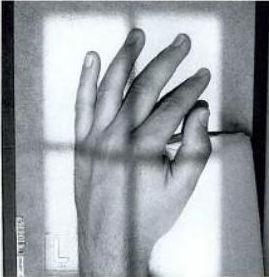 valu rays-up liigeste pohjustab Tugevdamine liigeste artroosi