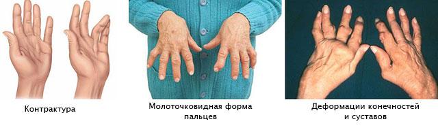Sormede ja kuunarnukkide harjade artroosi ja artriit