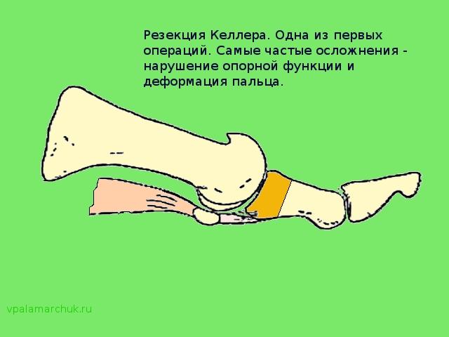 Sorme jalgade ravi liite poletik Ravi liigeste kuldse vuntsete haigustega