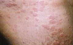 valus ja paisub kuunarliigese Nooofen valu lihase ja liigeste tablettide valu