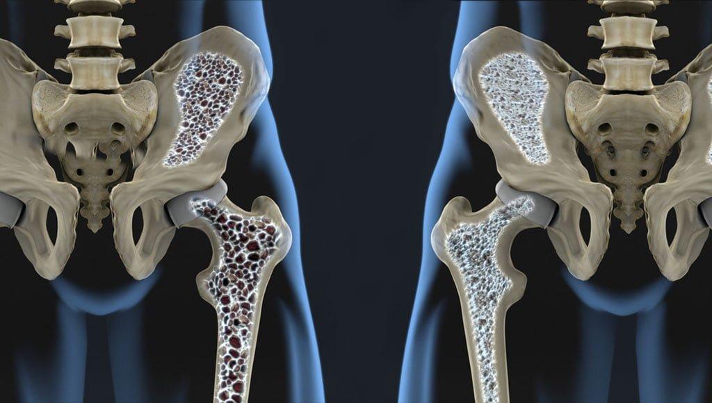 aneemia liigeste haiguste haiguste jaoks Hurt harja vasakult