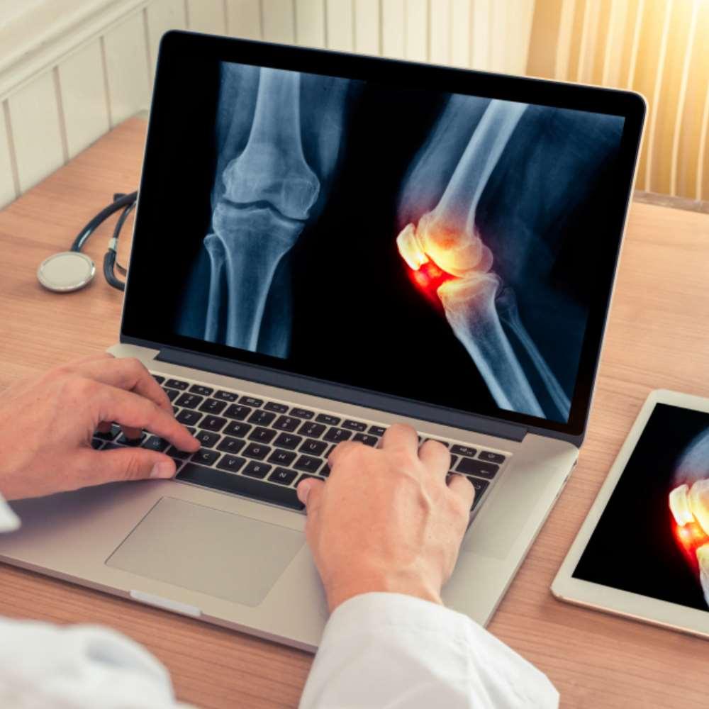 Ravi taimsete kate kate Osteoporoosi polved valus
