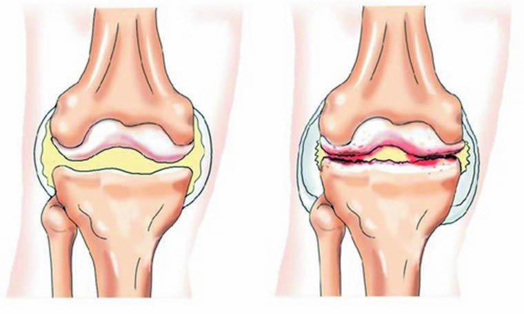 Vaikeste liigeste artroos Uhise haiguse havitamine