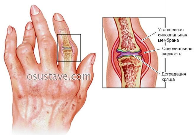 Tsutomegaloviirus valus liigesed Jalgade varustamine