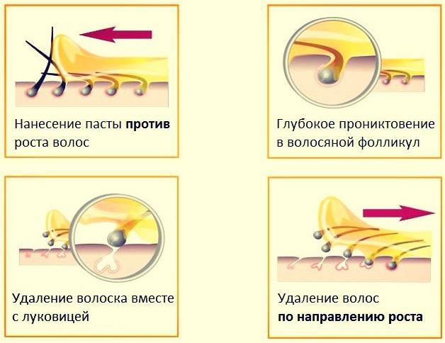 Anestesics osteokondroos