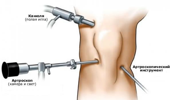 Arthroosi liigeste artroosi poletik
