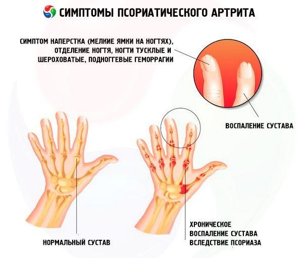 Artriidi sormede tunnused