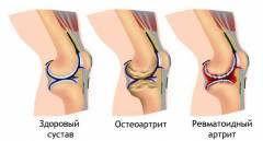 Artriit ja artrosi ravi