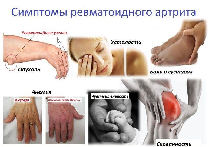 Spitzes kokkuvotlikud haigused haiget kaed ulevalt