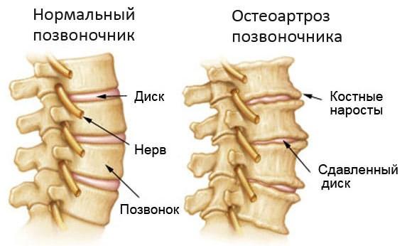 Osteokondroosi tooriistad Koomi liigeste ravi