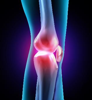 Artroosi valu liigeste tagasi