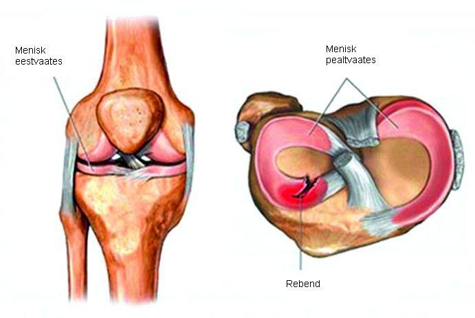 Ravi liigeste vigastus