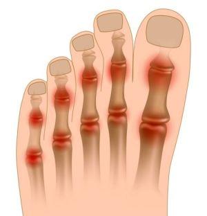 Liigeste ja GASTide ravi Artrosi olg kodus