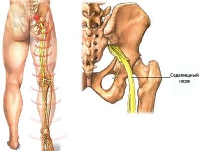 Osteokondroosi ja artroosi ravi kahjustada harja kate liigeseid