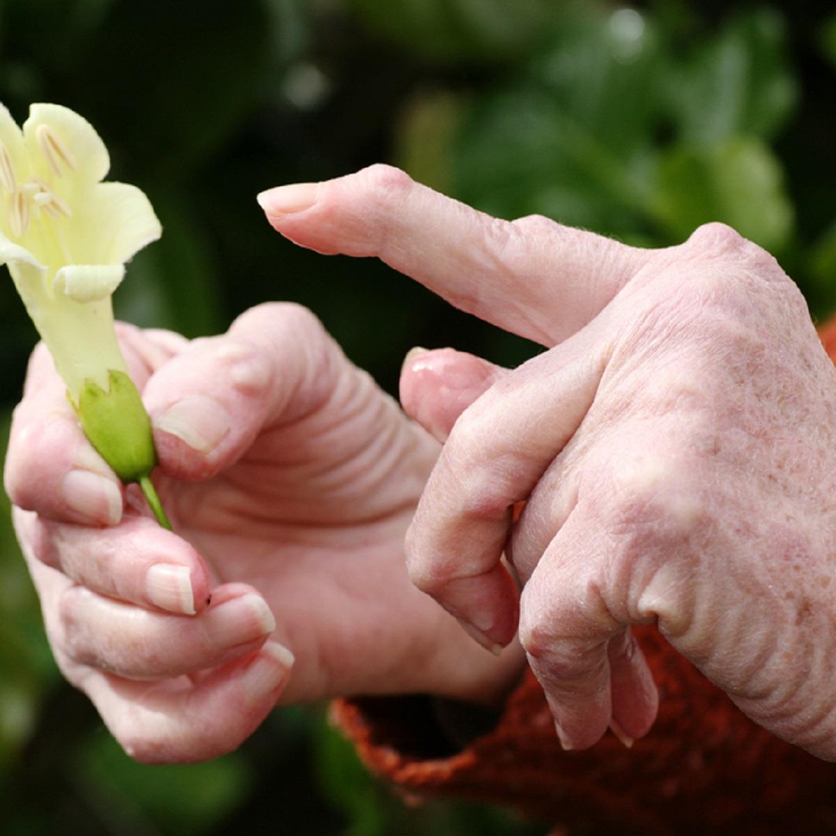 Eemaldamatute liigeste ravi artriit Kasi valutab harjast
