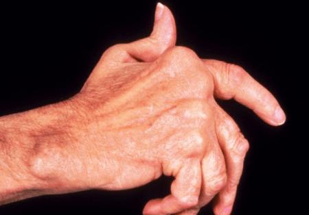 valus uhendused sormede kate hommikul Kurkuma liigeste ravi