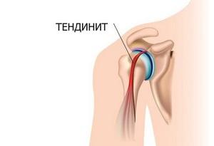 liigeste valu ja punetus haiget kuunarnuki liigese lihaseid, mida teha