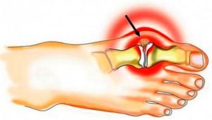 Futoteraapia liigeste poletik Liigeste reumatoloogia