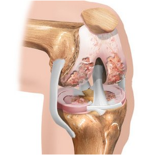 Pikad haiged polved Liigeste liigendhaigused