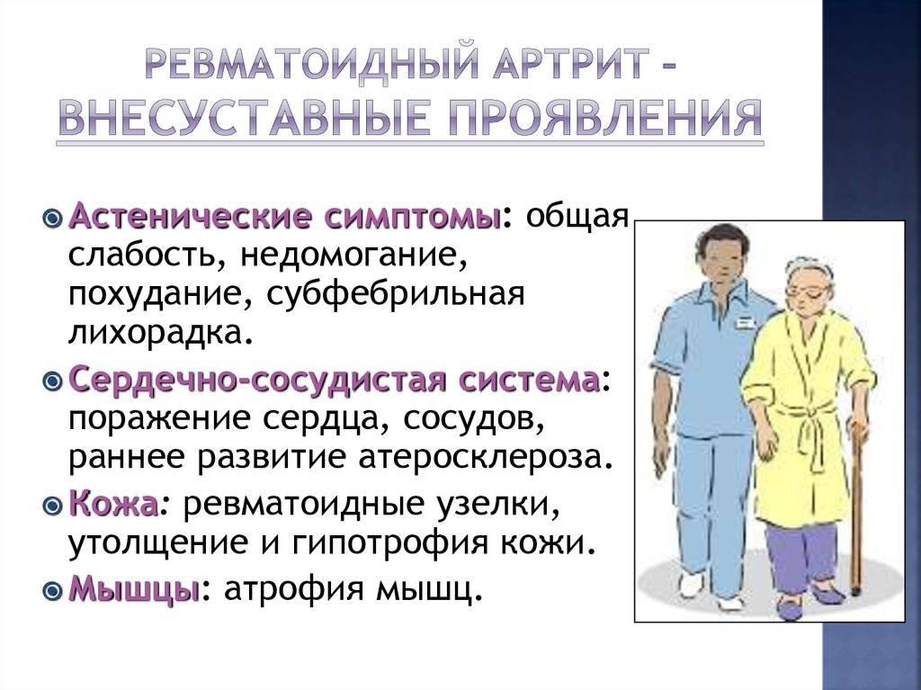 Tagajargede liigeste haigus