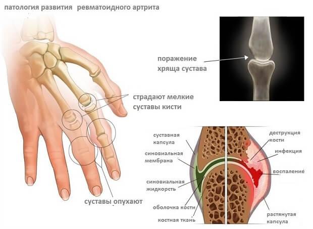 haiget ja pigistage sormede liigesed Allika liigeste ravi