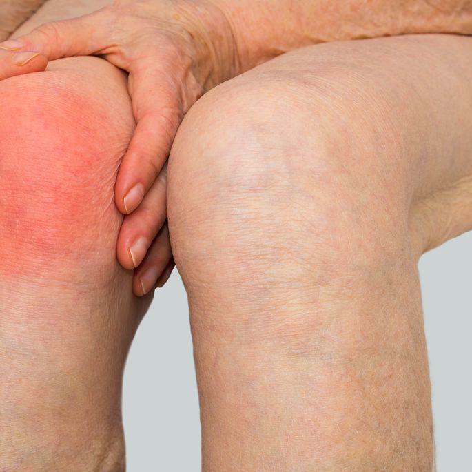 Mida teha valu liigestest Osteokondroos valus liigesed