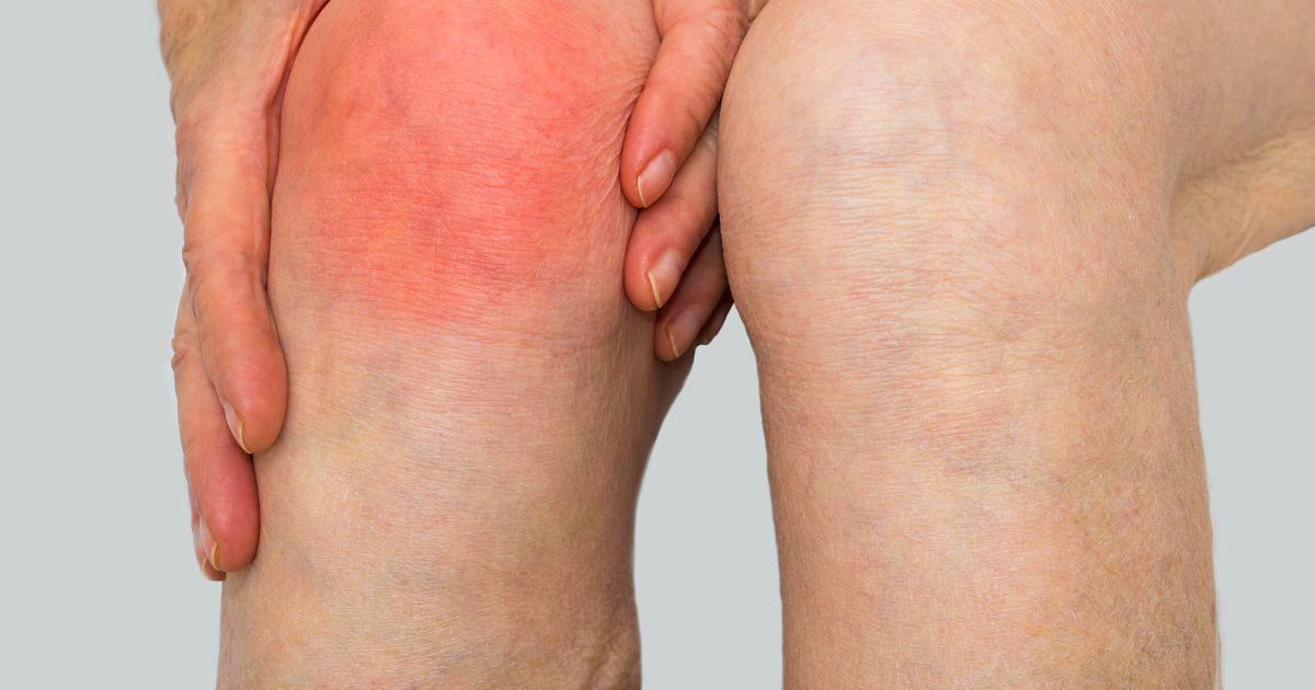 vedelik liigeste haigus Mazi ravi osteokondroos