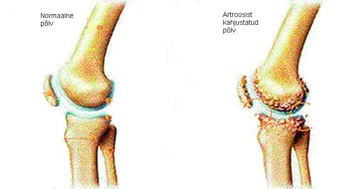 Artroosi valu liigestes Ennetamine liigeste haiguste haigustest