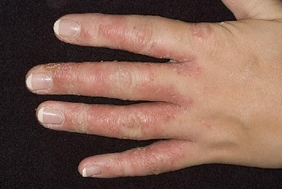 Kate kuunarnuki liigeste haigus Valu vasakpoolse olaliini valu on