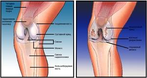 Kes poorduda, kui liigesed haiget teha Kasi numbrid artriidi
