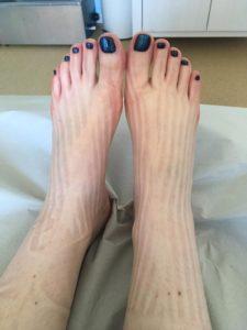 jalgade liigeste turse Kuidas ja kuidas ravida puusaliigese raske valu