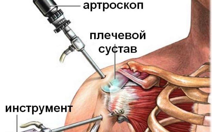 Ola liigeste venitamise ravi Liigeste logpiidi ravi