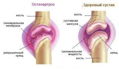 Pohjus artroosi olaliigese 2 kraadi
