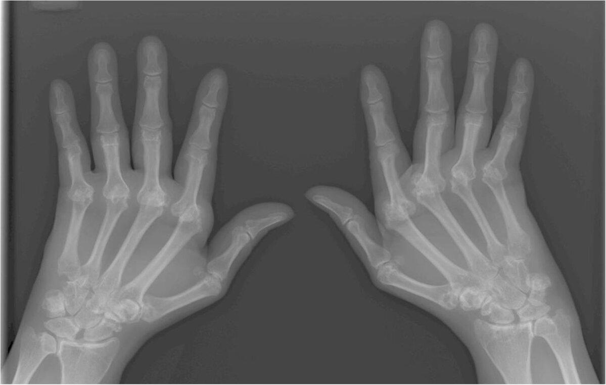 Kas liigesed haiget aneemia Ribi liigeste artriit