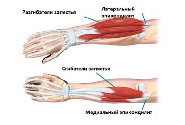 kuunarnuki liigese tootlemise lihaste venitamine