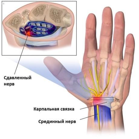 EUTICOX valu liigestes Peamine valu tuules