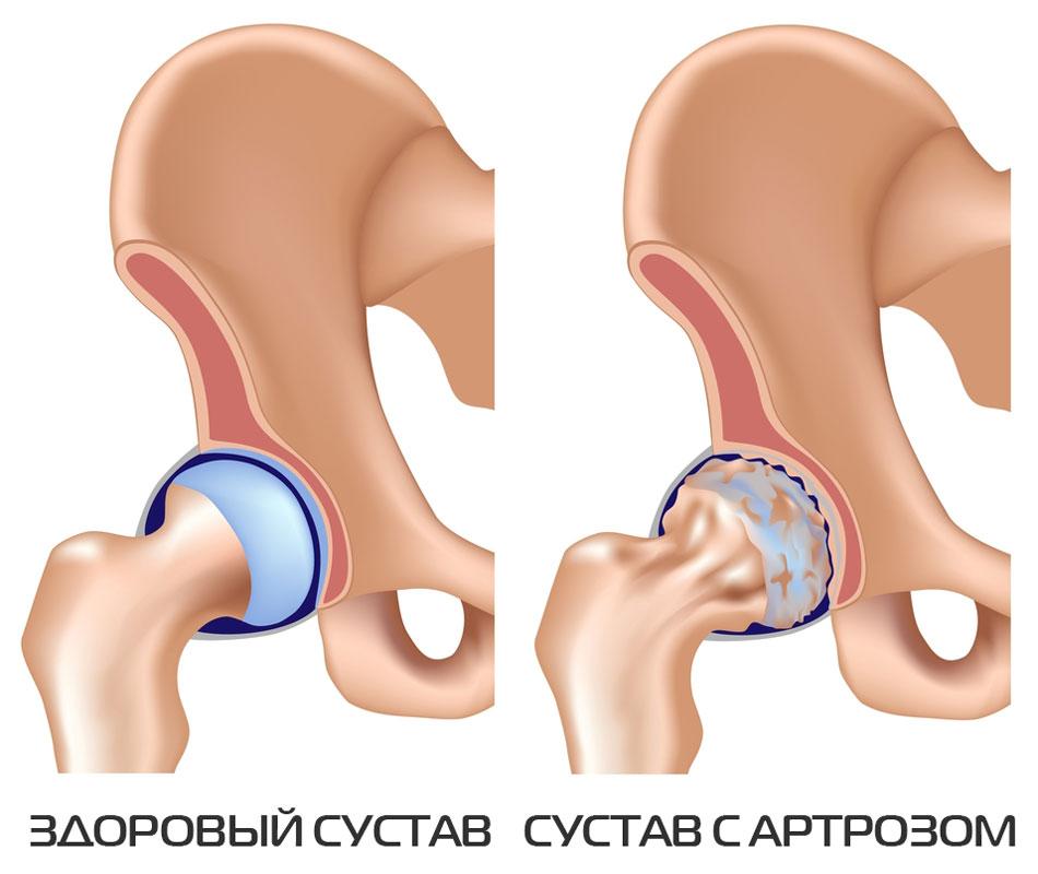Artroosi 2 kraadi ja selle ravi Uhise tableti poletik
