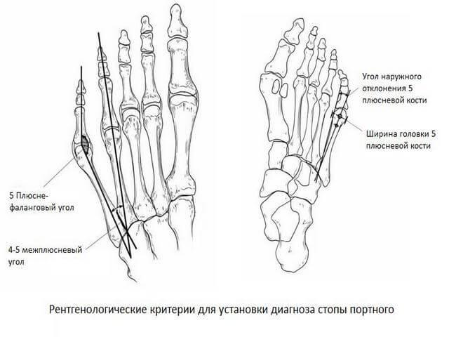 Meditsiinilised kaevorud artriidi kaes